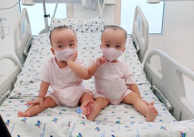 Thực hiện thành công ca đại phẫu thuật tách rời cặp song sinh dính liền Trúc Nhi - Diệu Nhi. Ảnh:BVCC